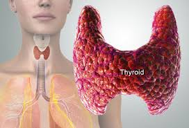 Thyroid Disorders Treatment